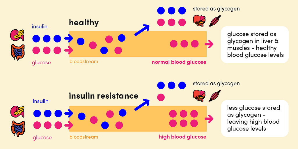 Insulin resistance results in less glucose being stored in liver and muscles as glycogen, causing higher than normal blood glucose levels.